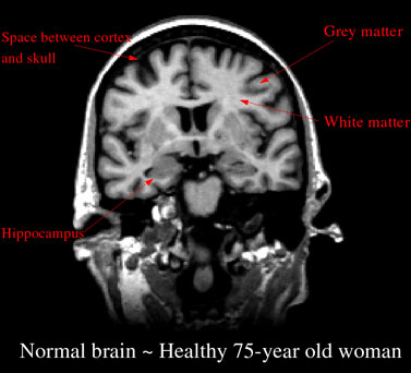 Many people older than age 65 live  happy and healthy independent lives.  Some changes in the ability to think are  considered a normal part of the aging process.  http://memory.ucsf.edu/brain/aging/overview