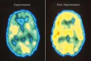 Depressed - not depressed